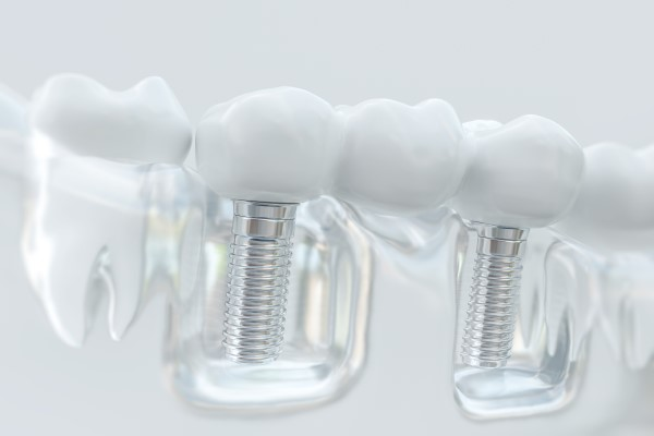 Why You Should Consider A Dental Implant For Tooth Replacement